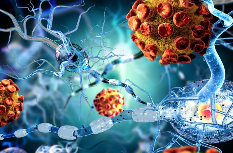 Korean researchers develop blood test technology to predict Alzheimer's