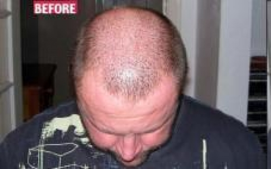 Solution to baldness, just $24