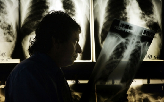 Do you know enough about tuberculosis?