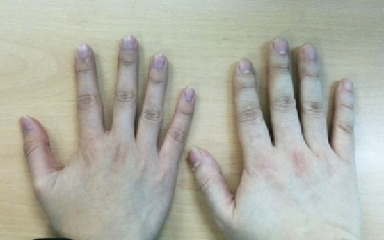 Attractive men have long... ring fingers: study