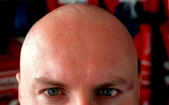 Baldness protein found in study that may lead to treatments