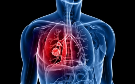 New microRNA may help diagnose lung cancer: study