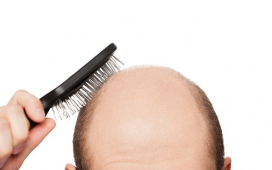 More men treated for hair loss