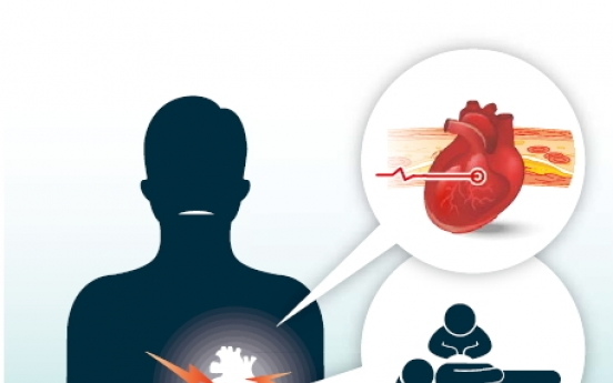 Heart attack (acute myocardial infarction)