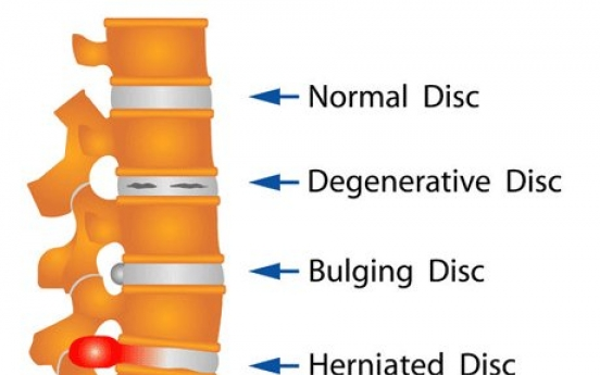 Rise in patients suffering herniated discs in neck