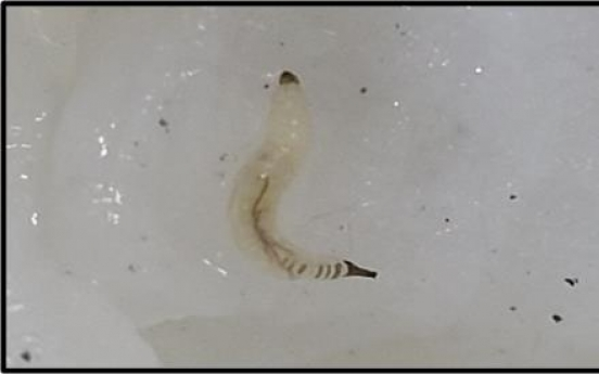 [Newsmaker] Larvae found in 7 water-purifying facilities