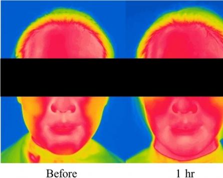 Amorepacific study shows harmful impact of mask wearing on skin