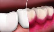 치주질환 예방 올바른 칫솔사용ㆍ정기검진에서 시작