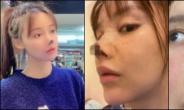 """""""코 하나만…"""" 中 미녀 배우, 성형 실패로 '코끝 괴사' 충격"""