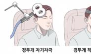 '백약무효' 이명 치료, 경두개 자기·직류 자극술 효과 확인