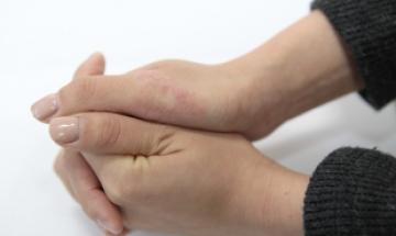 손 피부병, 우울증까지 유발할수 있다