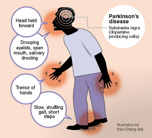 Parkinson S And Ear Ringing