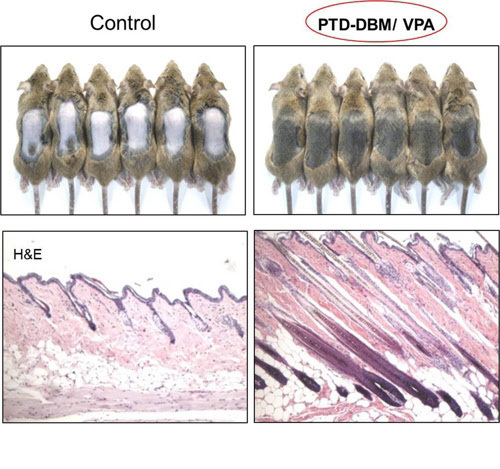 Korean scientists develop potential drug candidate for hair loss