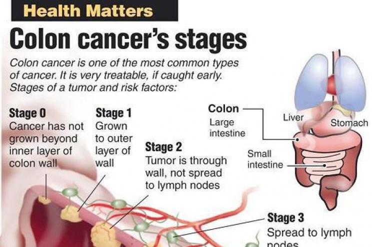 Guard Against Colon Cancer